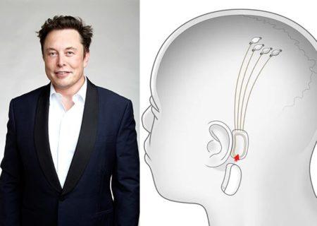 Elon Musk quiere implantarte un chip para que la música suene en tu cabeza